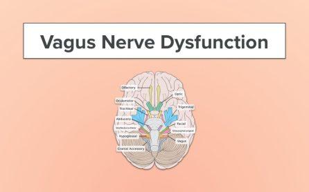 vagus-nerve-symptoms-1080x675
